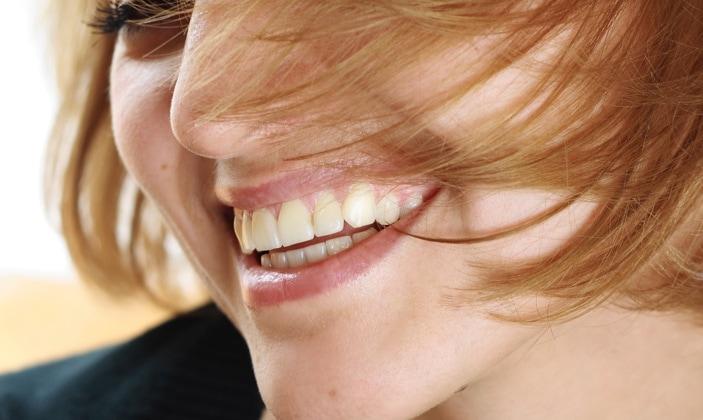 Parker Dental Care Veneers & Crowns