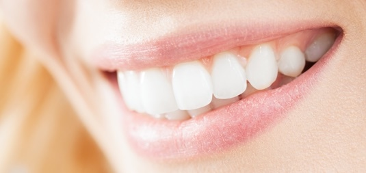 Parker Dental Care Implants teeth cleaning
