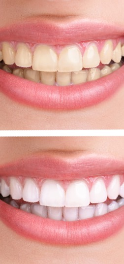 Parker Dental Care Implants tooth whitening